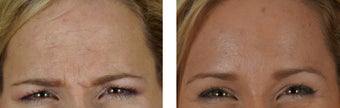 Botox to the Forehead/Glabella before 1312760