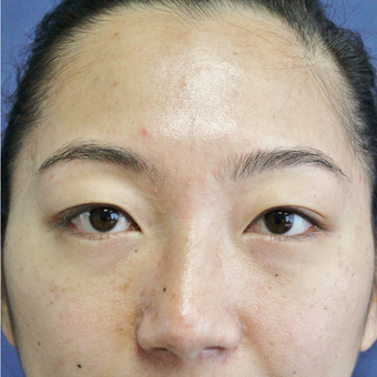 Asian Eyelid or Double Eyelid Surgery before 3776668