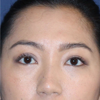 Asian Eyelid or Double Eyelid Surgery after 3776668