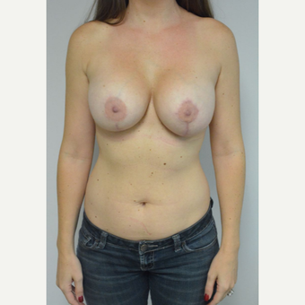 25-34 year old woman treated with Sientra Breast Implants after 3481803