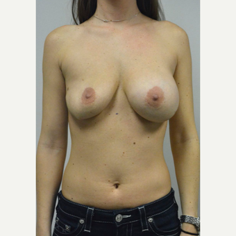 25-34 year old woman treated with Sientra Breast Implants before 3481803