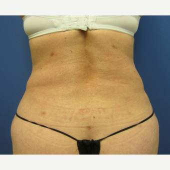45-54 year old woman treated with Liposuction after 3057381