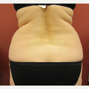 45-54 year old woman treated with Liposuction before 3057381
