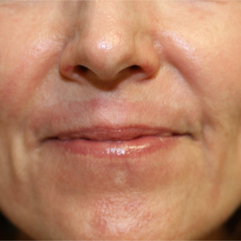 55-64 year old woman treated with Chemical Peel after 3837192