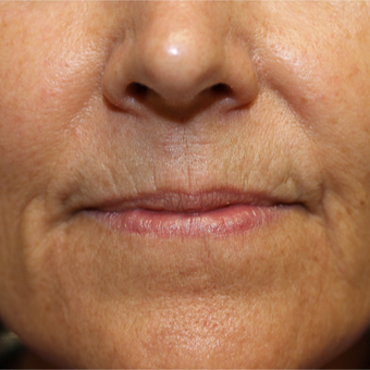 55-64 year old woman treated with Chemical Peel before 3837192