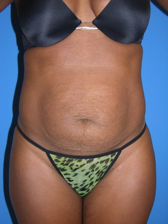 Tummy Tuck before 1025160