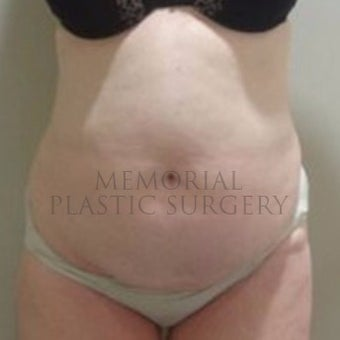 Woman treated with Tummy Tuck before 2652459