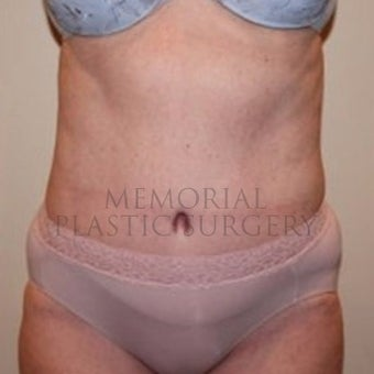 Woman treated with Tummy Tuck after 2652459