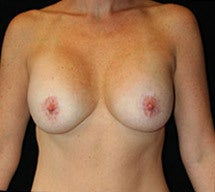 Breast Lift and Implants after 662458