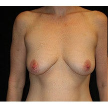 Breast Lift and Implants before 662458