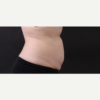 55 year old woman treated with CoolSculpting after 3220736
