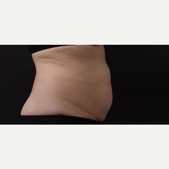 55 year old woman treated with CoolSculpting before 3220736