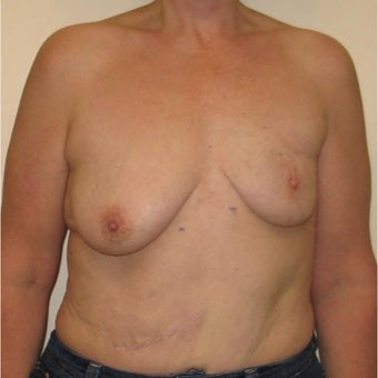 45-54 year old woman treated with Breast Reconstruction before 1622739