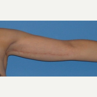 35-44 year old woman treated with Arm Lift after 2979259