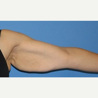 35-44 year old woman treated with Arm Lift before 2979259