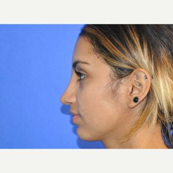 18-24 year old woman treated with Rhinoplasty after 3219758