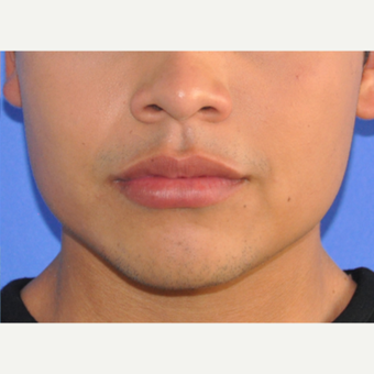 18-24 year old man treated with Lip Augmentation after 3219175