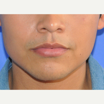 18-24 year old man treated with Lip Augmentation before 3219175