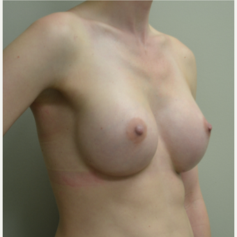 35-44 year old woman treated with Breast Augmentation after 2925011