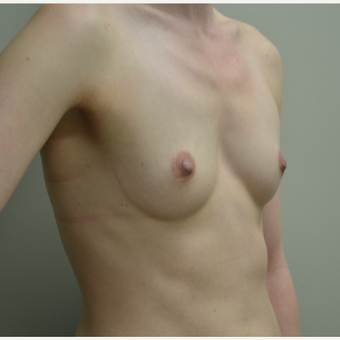 35-44 year old woman treated with Breast Augmentation before 2925011