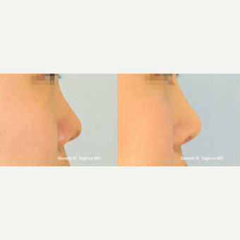 18-24 year old man treated with Asian Rhinoplasty using diced cartilage-fascia (DC-F) before 2858619