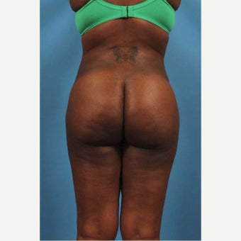 25-34 year old woman treated with Butt Augmentation after 1594211
