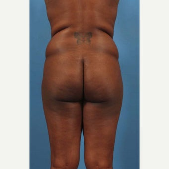 25-34 year old woman treated with Butt Augmentation before 1594211