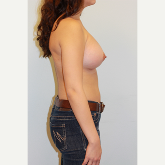 25-34 year old woman treated with Breast Augmentation after 3026811