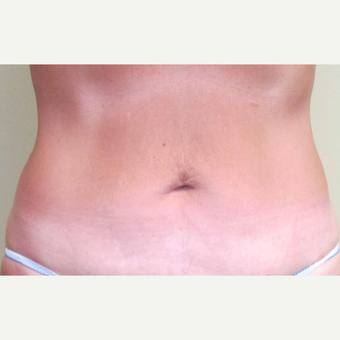 45-54 year old woman treated with Liposuction after 3305912