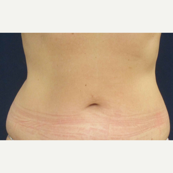 45-54 year old woman treated with Liposuction before 3305912