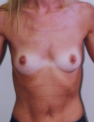 Breast Augmentation before 1302450