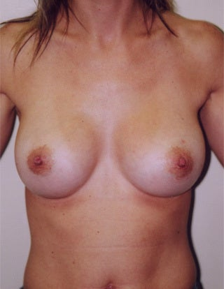 Breast Augmentation after 1302450