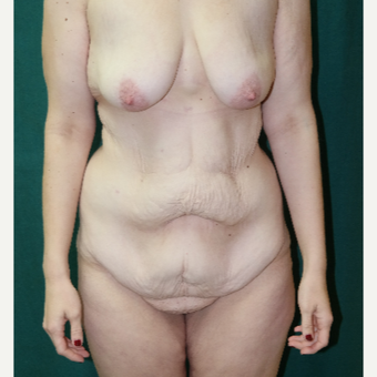 18-24 year old woman treated with Body Lift before 2882127