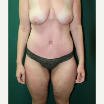 18-24 year old woman treated with Body Lift after 2882127