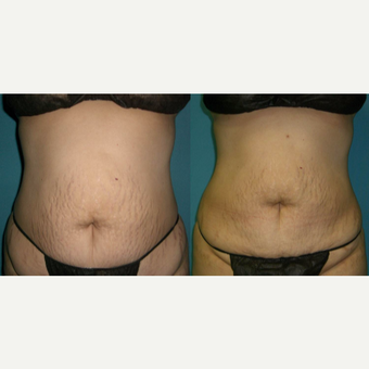 25-34 year old woman treated with Smart Lipo before 3041601
