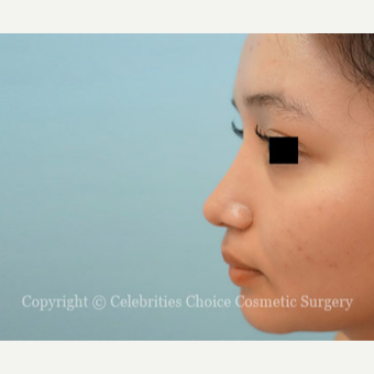 17 or under year old woman treated with Rhinoplasty after 3768677