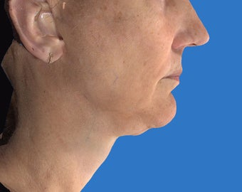 Exilis Treatment of the Neck before 1208322