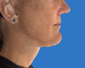 Exilis Treatment of the Neck after 1208322