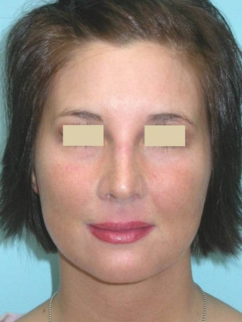 Rhinoplasty after 148586