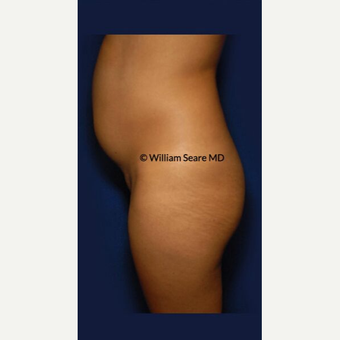 35-44 year old woman treated with Liposuction before 3803175