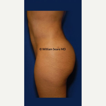 35-44 year old woman treated with Liposuction after 3803175