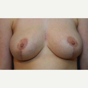 Breast Reduction after 3108944