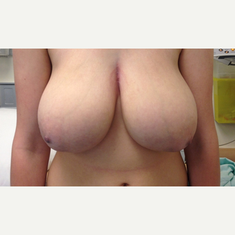 Breast Reduction before 3108944