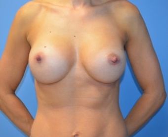 Breast Implants after 1495619