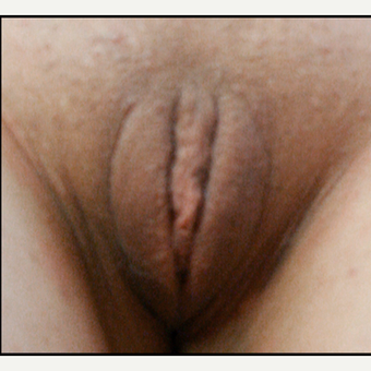 25-34 year old woman treated with Vaginal Rejuvenation after 3146928