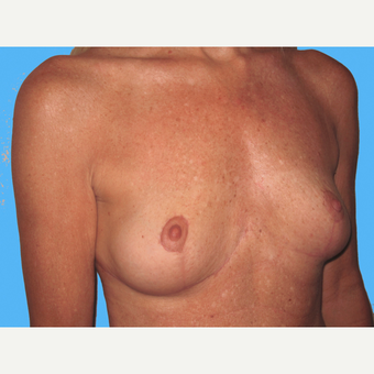 Breast Implant Removal after 3809807