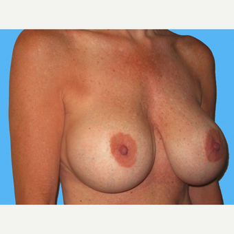 Breast Implant Removal before 3809807
