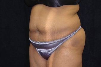 Abdominoplasty with Liposuction before 1343356