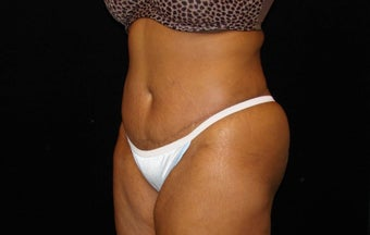 Abdominoplasty with Liposuction after 1343356