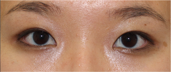 Double eyelid surgery for crease asymmetry after 3366891